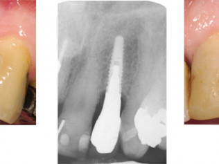 Left to right: Missing tooth. - X-Ray film of implant in place. - Restored implant: note that the crown can be made to match.