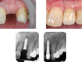 Left to right top: Missing front tooth. - 4 1/2 years after implant restoration. Left to right bottom: X-Ray films show implant in place and restored implant.