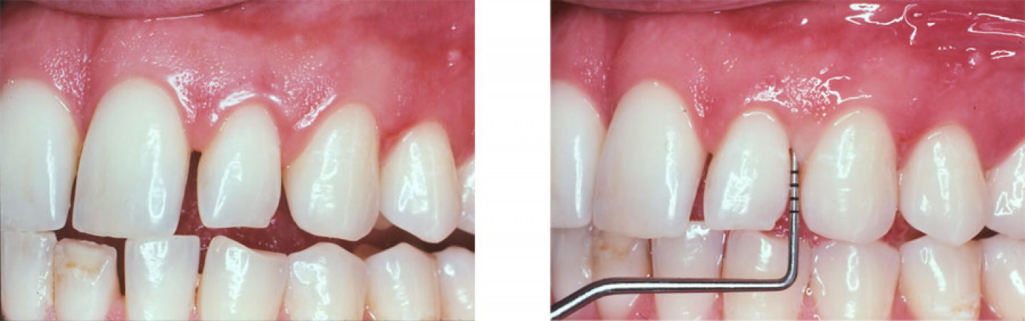 Left: Normal appearing gums. Right: Deep pocket found with a periodontal probe.