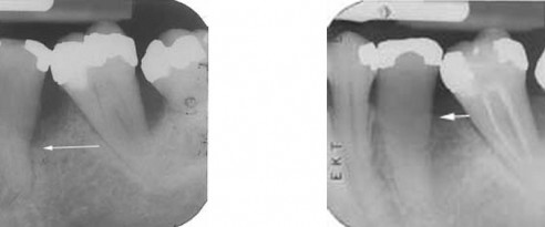 Left: Bone level at initial examination. Right: Bone level after successful regeneration.