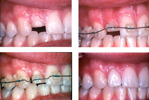 From left to right top: Broken front tooth. - Orthodontic appliance in place. From left to right bottom: Tooth extruded without changin the gumline. - Tooth restored with a new crown.