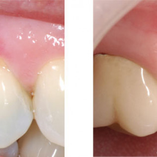 Left: Gum recession from toothbrush/toothpaste trauma. Right: 3 1/2 years after gum grafting.