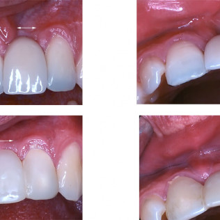 Left to right top: Ridge restoration after tooth loss. Note the large defect. - Note the loss of gum contour. Left to right bottom: 5 weeks after grafting and temporary bridge placement. - Note the improved contours.