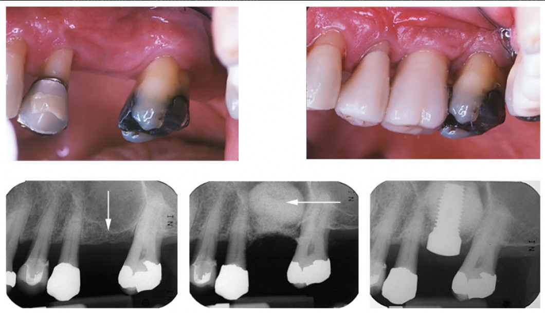 Left to right top: Missing upper left molar. - Implant 5 years after successfull restorarion. Left to right bottom: The white line is the floor of the sinus. - Bone graft in place after an osteotome sinus left. - Implant successfully placed.