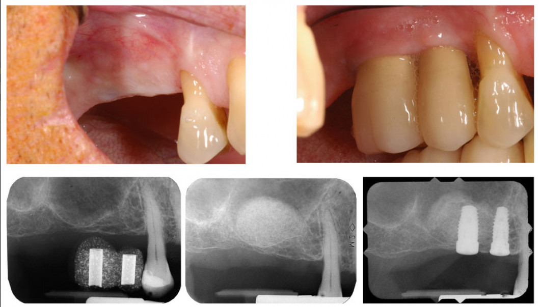 Left to right top: Missing upper right molars and bicuspid. - First molar and second bicuspid succssfully restored. Left to right bottom: Surgical guide showing bone height is deficient for implant placement. - Bone graft in place, lateral approach. - Implants successfully placed.