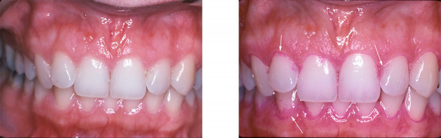Left: Theese teeth appear to be clean. Right: Pink stained areas on the teeth are dental plaque.